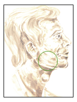 MAXILLO FACIAL / SINUS